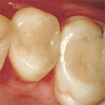 Foto: Zahnfüllung aus Kunststoff -